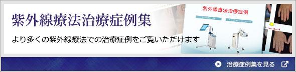 紫外線療法治療症例