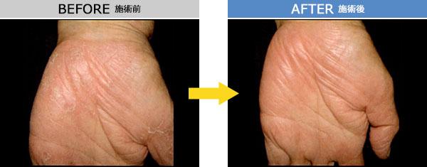 アトピー性皮膚炎 治療症例1
