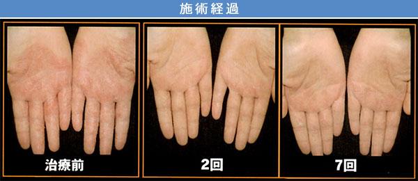 アトピー性皮膚炎 治療症例2