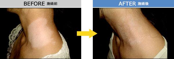 白斑 治療症例