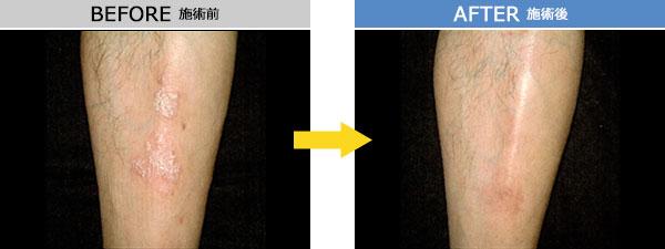 尋常性乾癬 治療症例