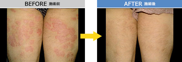 尋常性乾癬 治療症例2
