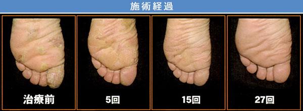 掌蹠膿疱症 治療症例2