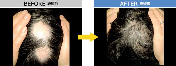 円形脱毛症 治療症例