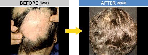 円形脱毛症 治療症例2
