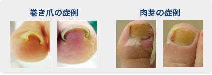 巻き爪症例