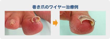 写真:巻き爪のワイヤー治療例