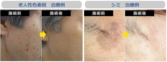 老人性色素斑、シミの治療例
