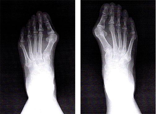 外反母趾のレントゲン画像