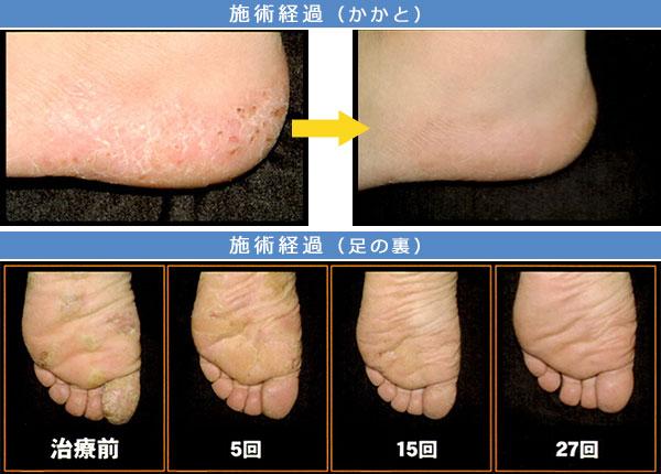 掌蹠膿疱症 治療症例